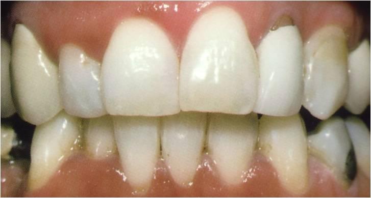 Dentalhygiene nach der Zahnreinigung
