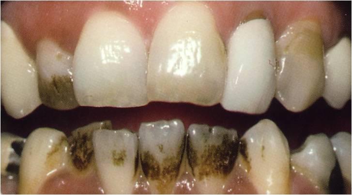 Dentalhygiene vor der Zahnreinigung