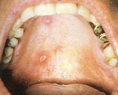 Derma varizellen