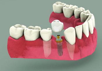 Implantat Schema 2