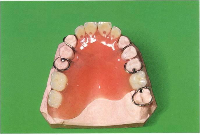 Klammerteilprothese 4