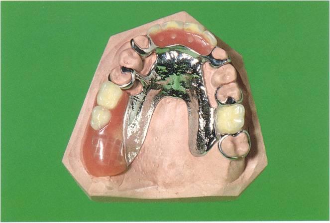 Klammeteilprothese 3