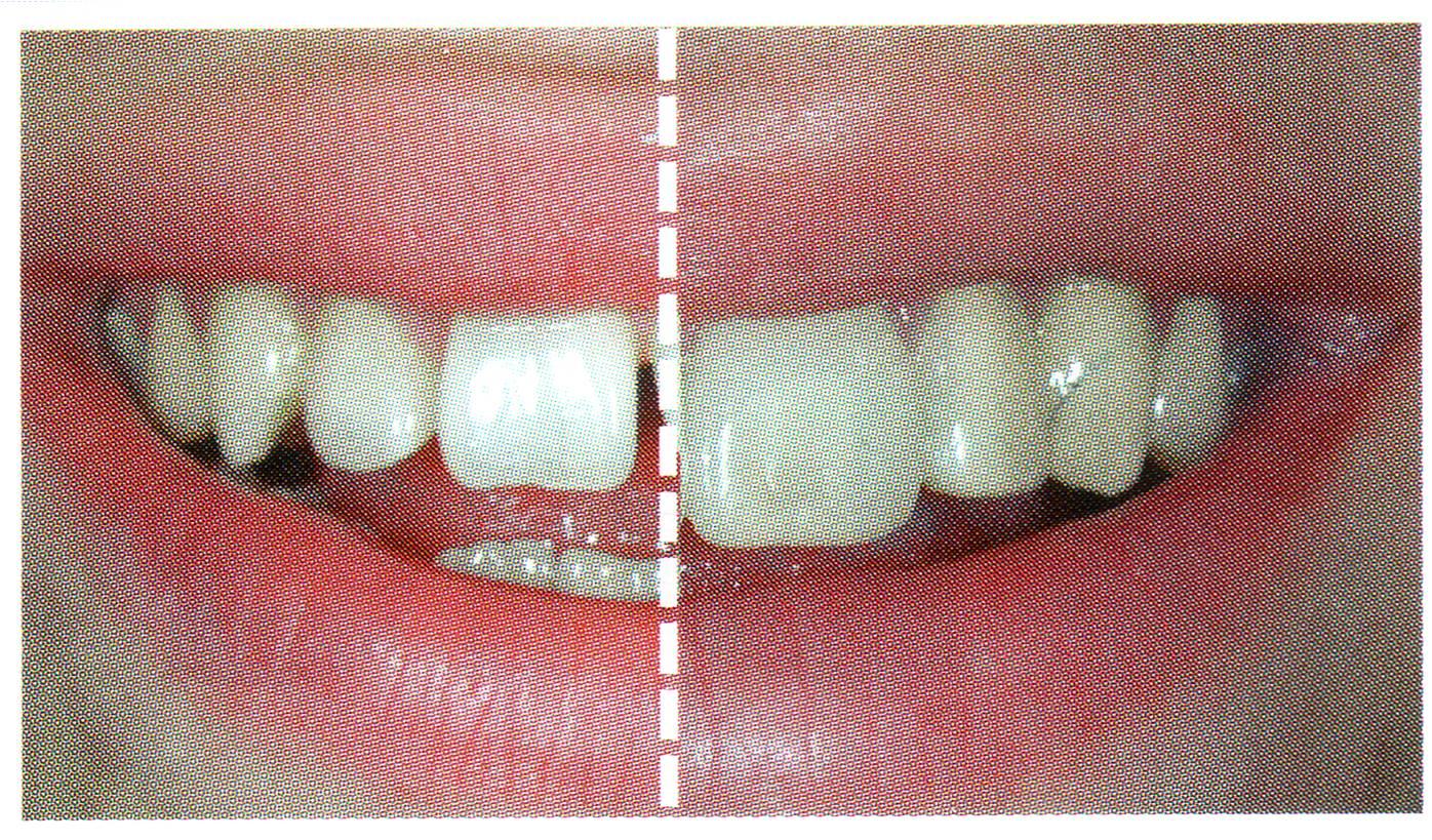 Zahnformkorrektur 1