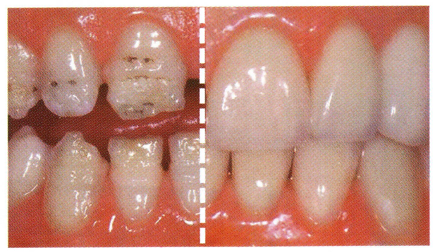 Zahnformkorrektur 2