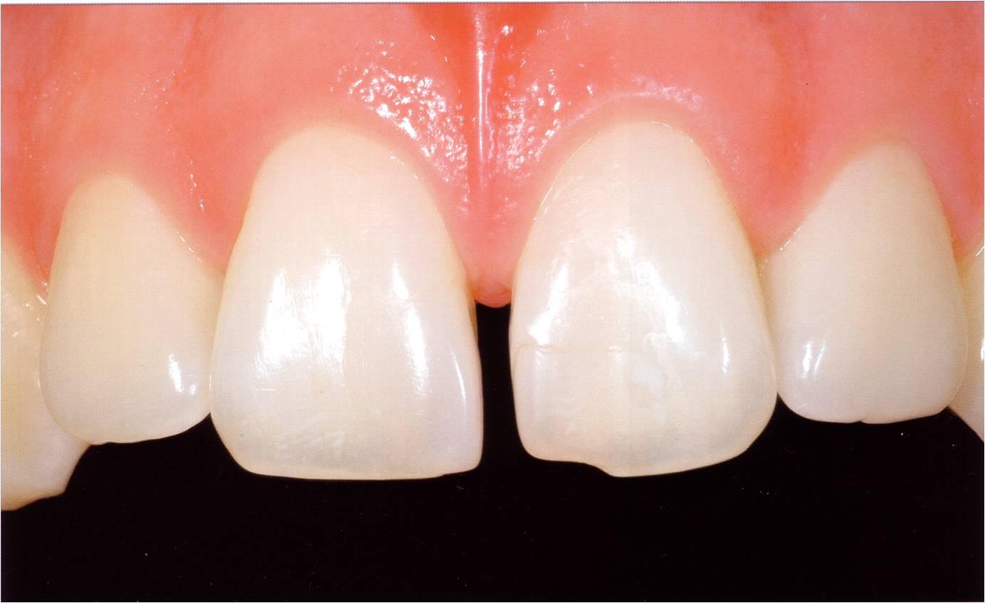 Zahnformkorrektur 3