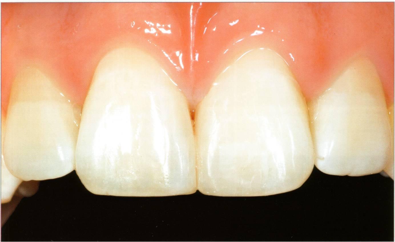 Zahnformkorrektur 4