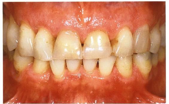 Zahnformkorrektur 5