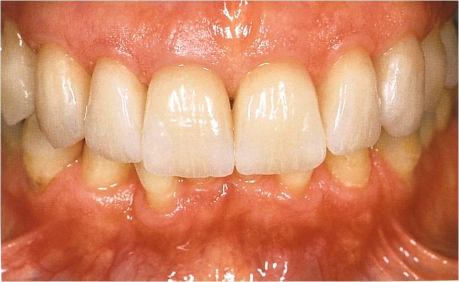 Zahnformkorrektur 6